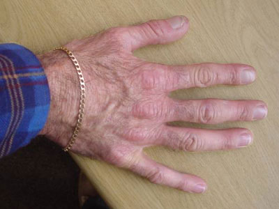 HAnds of a patient with EPP